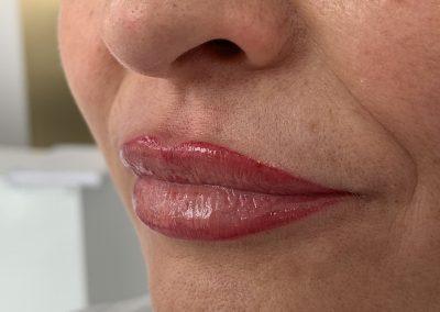 Usta bezpośrednio po pigmentacji
