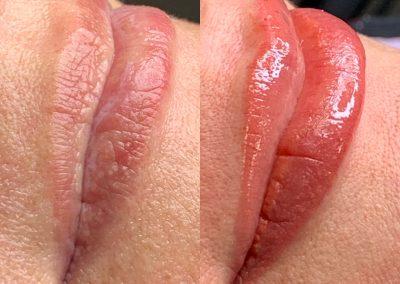 Naturalne usta przed i po zabiegu