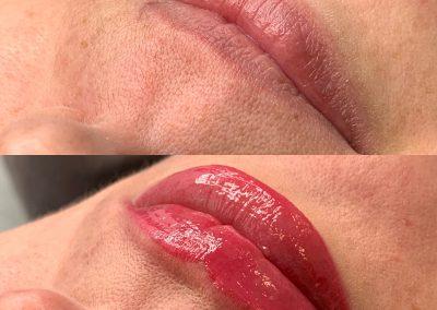 Usta permanentne przed i po zabiegu