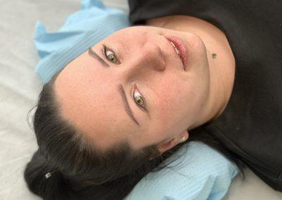 Wygojone ombre po 1 zabiegu, przed dopigmentowaniem