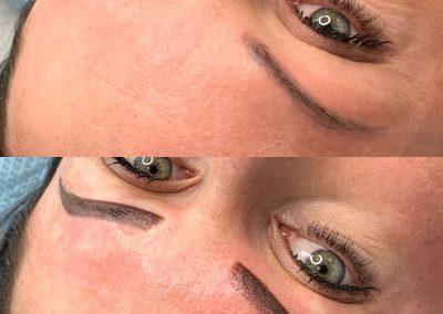 Naprawa makijażu permanentnego, wykonanego w innym gabinecie, po usuwaniu laserowym